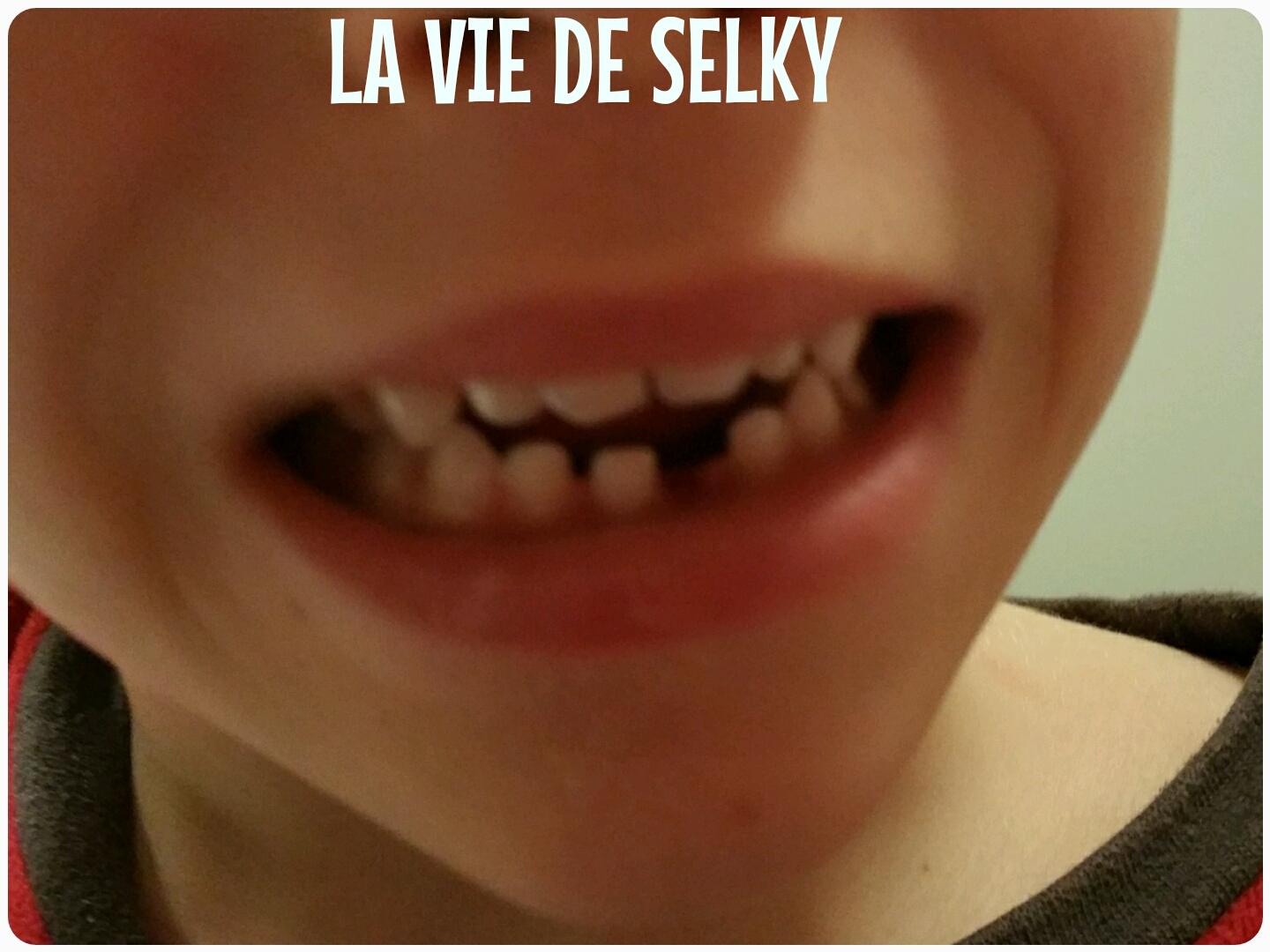 Selky rewinde mars S17E03 #01 3